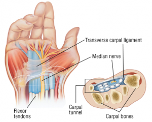 wrist-image